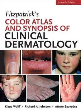 Fitzpatricks Color Atlas and Synopsis of Clinical Dermatology, Seventh Edition (Color Atlas & Synopsis of Clinical Dermatology (Fitzpatrick)) 7 9780071793025
