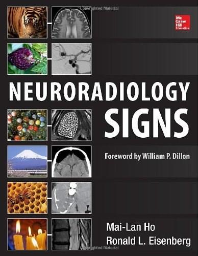 Neuroradiology Signs, by Ho 9780071804325