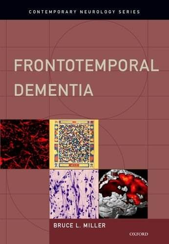 Frontotemporal Dementia, by Miller 9780195380491