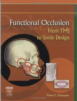 Functional Occlusion: From TMJ to Smile Design, by Dawson 9780323033718
