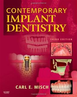 Contemporary Implant Dentistry, by Misch, 3rd Edition 9780323043731