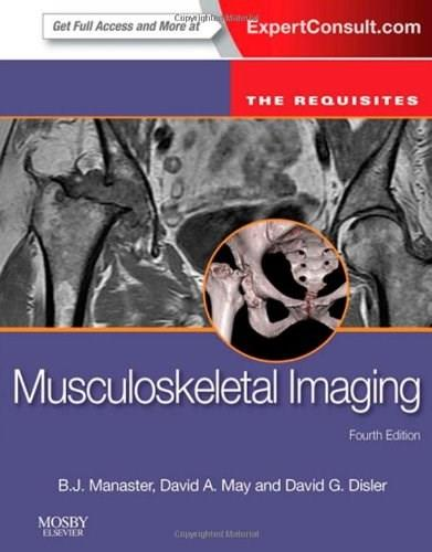 Musculoskeletal Imaging: The Requisites, 4e (Requisites in Radiology) 9780323081771