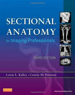 Sectional Anatomy for Imaging Professionals, 3e 9780323082600