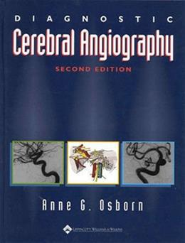 Diagnostic Cerebral Angiography, by Osborn, 2nd Edition 9780397584048