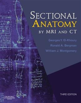 Sectional Anatomy By MRI and CT, by El-Khoury, 3rd Edition 3 PKG 9780443066665