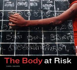 Body at Risk: Photography of Disorder, Illness, and Healing, by Squiers 9780520247338