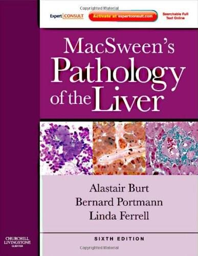MacSweens Pathology of the Liver: Expert Consult: Online and Print, 6e (Expert Consult Title: Online + Print) 9780702033988