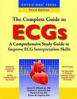 Complete Guide to ECGs, by O