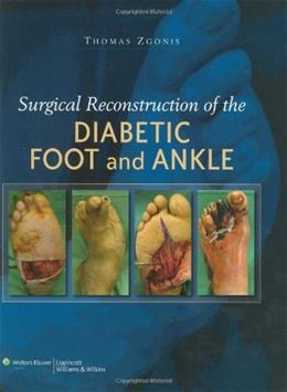 Surgical Reconstruction of the Diabetic Foot and Ankle, by Zgonis 9780781784580