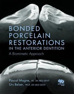 Bonded Porcelain Restorations in the Anterior Dentition, by Magne 9780867154221
