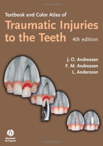 Textbook And Color Atlas Of Traumatic Injuries To The Teeth, by Andreasen, 4th Edition 9781405129541