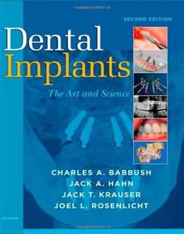 Dental Implants: The Art and Science, by Babbush, 2nd Edition 9781416053415