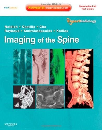 Imaging of the Spine, by Naidich 9781437715514