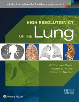 High-Resolution CT of the Lung Fifth 9781451176018