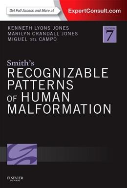 Smiths Recognizable Patterns of Human Malformation, by Jones, 7th Edition 7 PKG 9781455738113