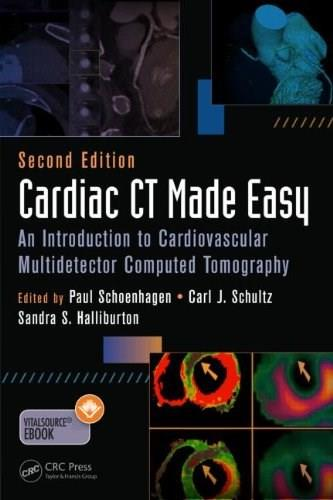 Cardiac CT Made Easy: An Introduction to Cardiovascular Multidetector Computed Tomography, by Schoenhagen, 2Nd Edition 9781482214215