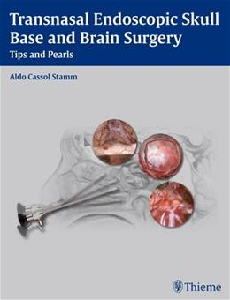 Transnasal Endoscopic Skull Base and Brain Surgery: Tips and Pearls, by Stamm 9781604063103