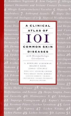 Clinical Atlas of 101 Common Skin Diseases: with Histopathologic Correlation, by Ackerman 9781893357105