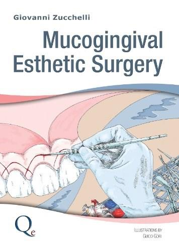 Mucogingival Esthetic Surgery, by Zucchelli 9788874921713