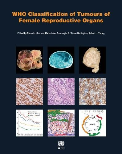 WHO Classification of Tumours of the Female Reproductive Organs (IARC WHO Classification of Tumours) 4 9789283224358